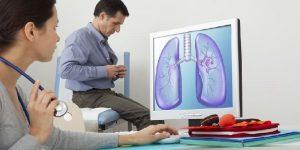 apakah kanker paru paru menular